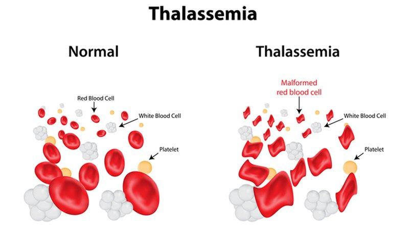 thalassemia nhung dieu can biet 1