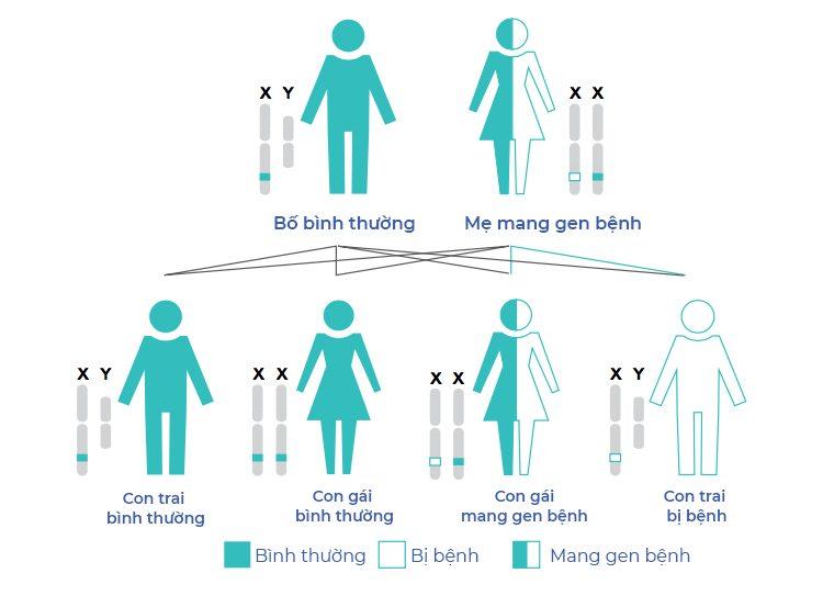 Bố mẹ bình thường hoàn toàn có thể sinh con mắc bệnh Pompe