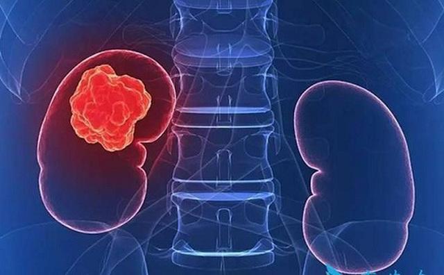 Thay đổi trong quá trình tiêu hóa là 1 trong những dấu hiệu cảnh báo ung thư