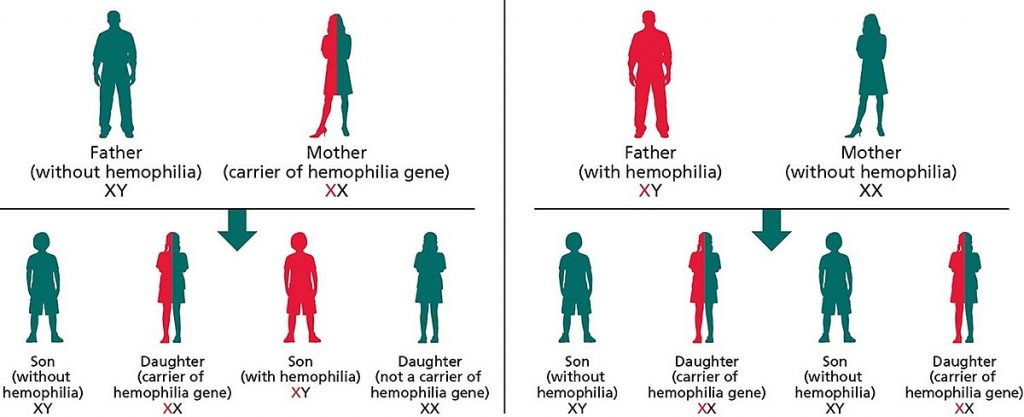 how hemophilia inherited jpeg 3030 3711 1618656566