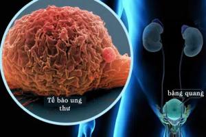 Bạn biết gì về bệnh ung thư bàng quang?