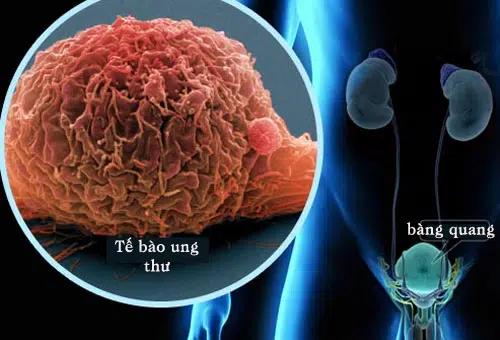 ung thư bàng quang là gì