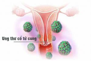 Ung thư nội mạc tử cung: Dấu hiệu nhận biết và cách điều trị