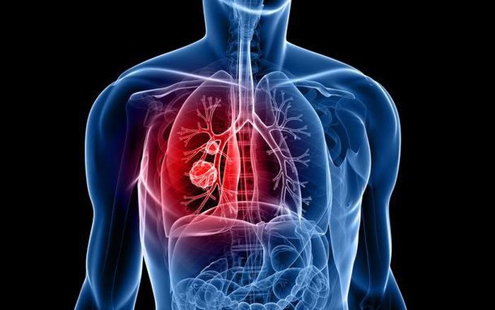 Phương pháp mới chữa trị ung thư phổi hiệu quả mới nhất