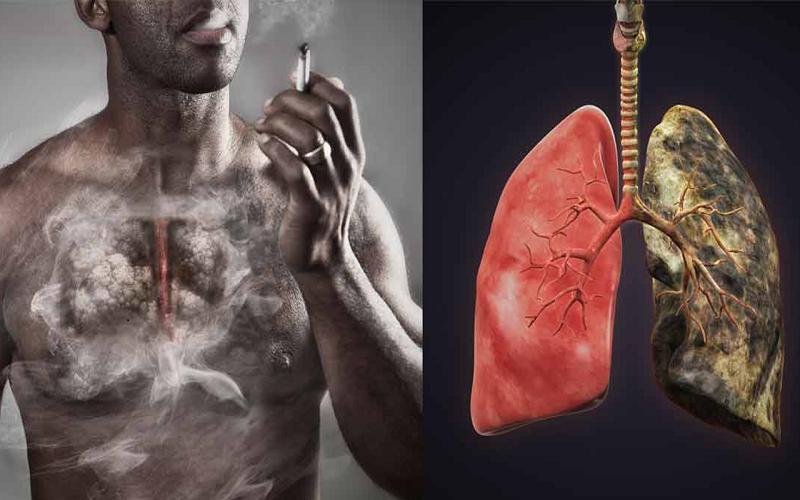 Phương pháp mới chữa trị ung thư phổi hiệu quả