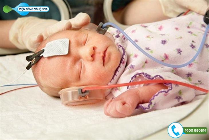 Biện pháp Sàng lọc sơ sinh: Đo thính lực, nhĩ lượng và phản xạ cơ bàn đạp
